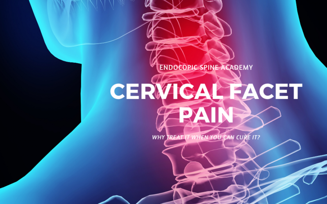 Why Manage Cervical Facet Pain When You Can Cure it?